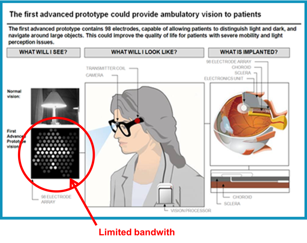 Diagram outlining bionic eye prototype