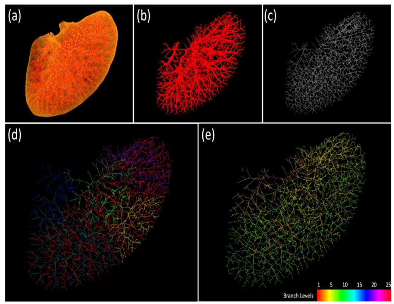 automated quantitative analysis of 3d angiogenesis for