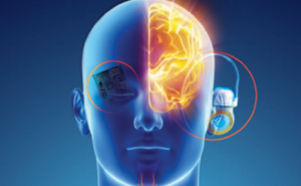 A head with the brain partly exposed and attached to an electronic device.
